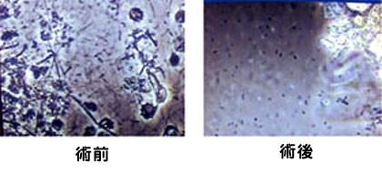症例菌-1