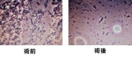 症例菌-2