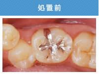奥歯処置前.jpg
