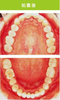 白い歯処置後.jpg